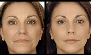 Sagging neck jowls medi sculpt clinic 3d vector face lift with dermal fillers ccuart Image collections