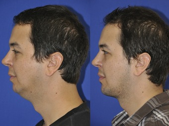 Chin-before-after