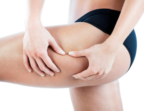 THE REVOLUTIONARY TREATMENT AGAINST CELLULITE WE'VE ALL BEEN WAITING FOR