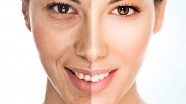 Microdermabrasion VS. Chemical Peel