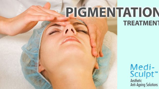 Pigmentation Treatment – An Aesthetic Solution
