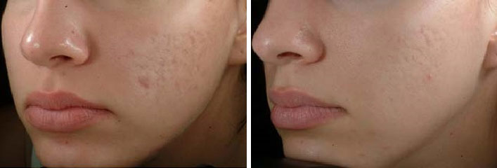 chemical_peel_before-after