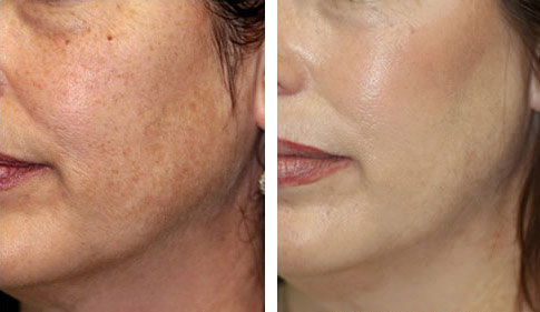 hyperpigmentation_before_after