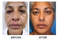 Non surgical face volumization (2)
